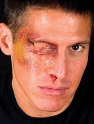 Picture of Swollen Eye