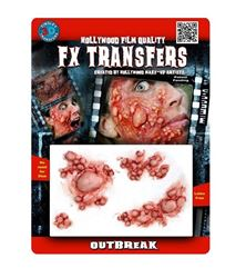 Picture of Outbreak