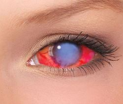Picture of Sclera Lenses -Zombie WALKER